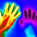 Raynaud's Thermal Image Is an Award Winner